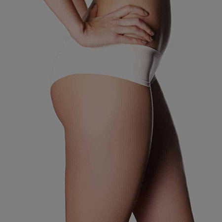 coolsculpting thighs